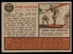 1962 Topps #151 NRM Johnny Klippstein  Back Thumbnail